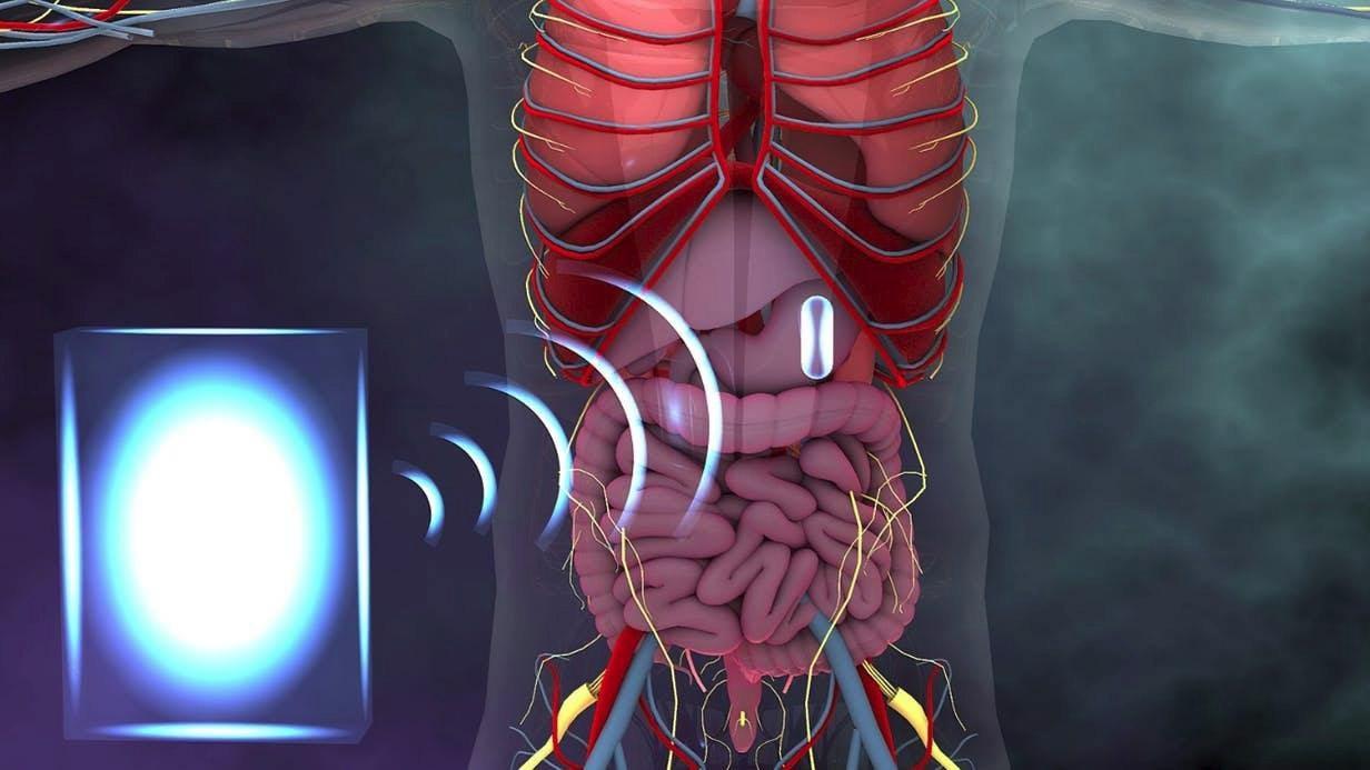 Учёные придумали, как заряжать датчики, размещенные в теле