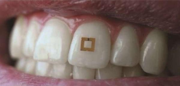 Датчик на зубе позволит контролировать питание
